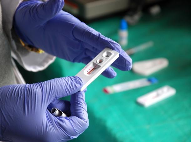 HIV test at Pomerini in Tanzania