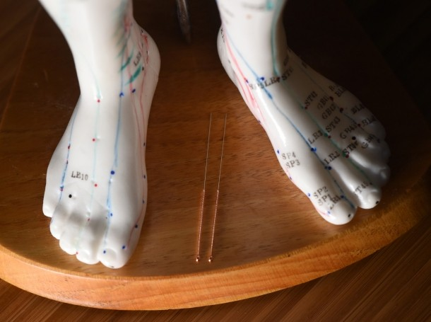 Acupuncture needles pictured between the feet of an acupuncture model