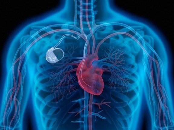 An illustration of a pacemaker in a person's chest, image by peterschreiber.media/Adobe Stock