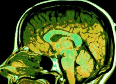 brain scan cross section of human head